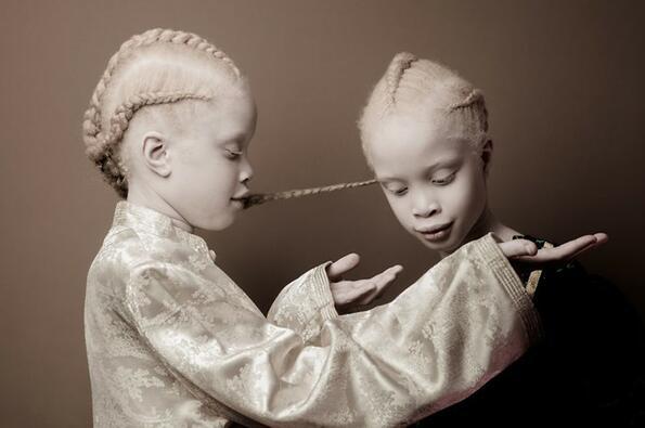 6 снимки на близначките албиноси, които станаха сензация в интернет!