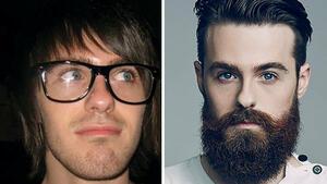 Мъже споделят снимки преди и след като са си пуснали брада