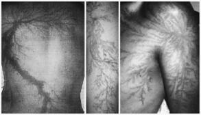 <p>Всъщност снимките, които ще видите, представляват кожни изгаряния с интересни форми. Подобни ефекти са били наблюдавани от немския физик Георг Лихтенберг още през 1777 г, когато е проследявал как електричеството преминава през изолационни материали.</p>